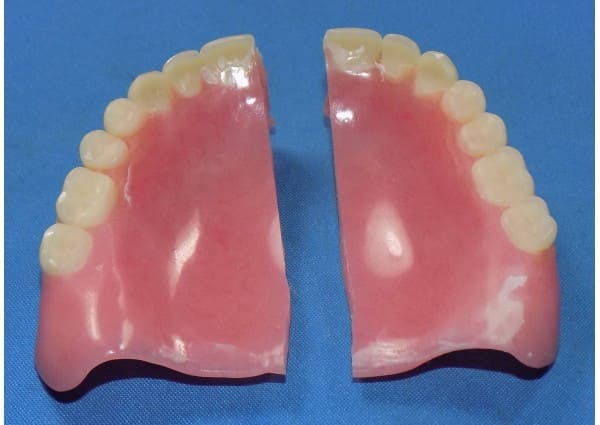 Broken partial denture.