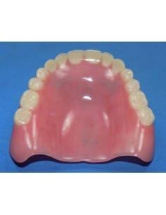 Repaired upper denture