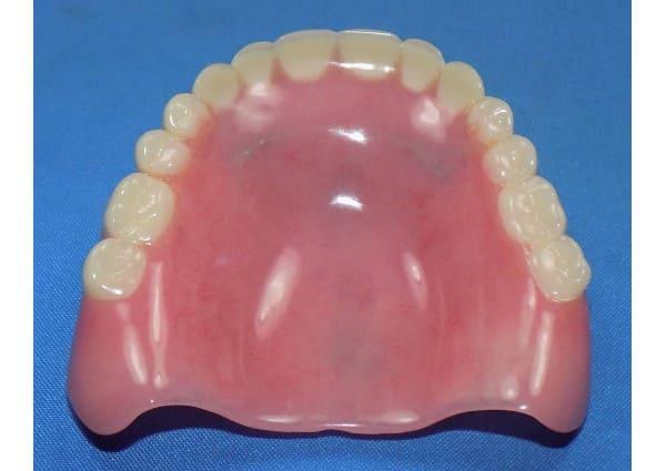 Before: Full upper denture broken in half.
