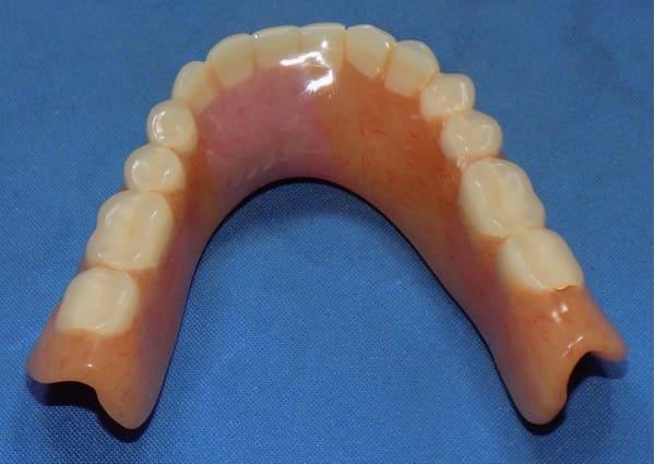 Repaired lower denture