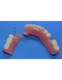 Broken lower partial denture