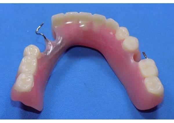 Repaired lower partial denture