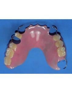 Repaired upper partial denture