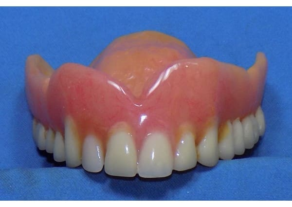 Replaced denture tooth