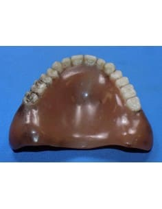Stained upper denture