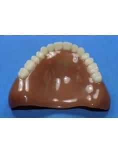 Cleaned & polished upper denture