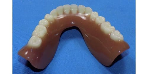 Upper denture repaired with acrylic.